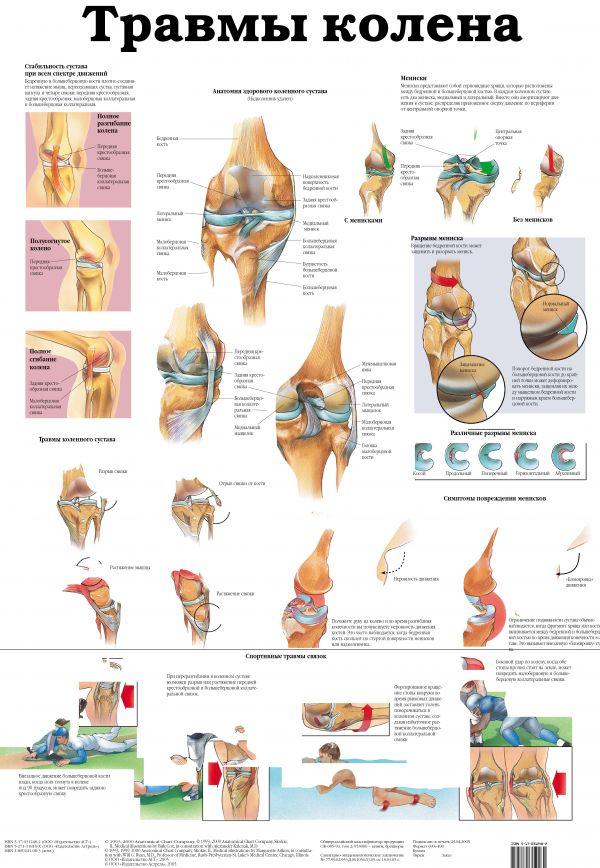 Травмы колена. Остеопороз