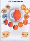 Заболевания глаз. Анатомия пищеварительной системы и болезни желудка и пищевода