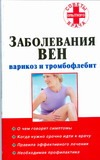 Старцев В.А. - Заболевания вен: варикоз и тромбофлебит обложка книги