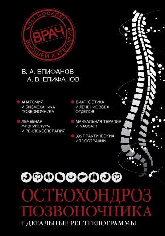 Остеохондроз позвоночника + детальные рентгенограммы Епифанов В.А.