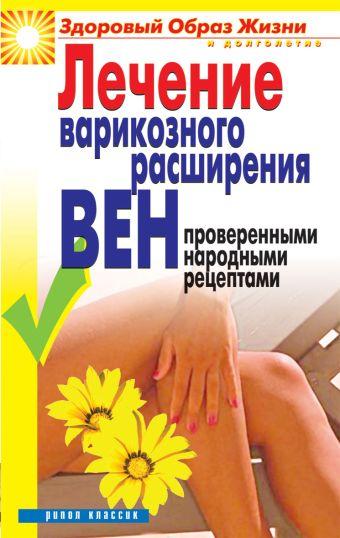Лечение варикозного расширения вен проверенными народными рецептами Андреева Е.А.