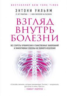 Обложка Взгляд внутрь болезни. Все секреты хронических и таинственных заболеваний и эффективные способы их полного исцеления (2-е издание) Энтони Уильям